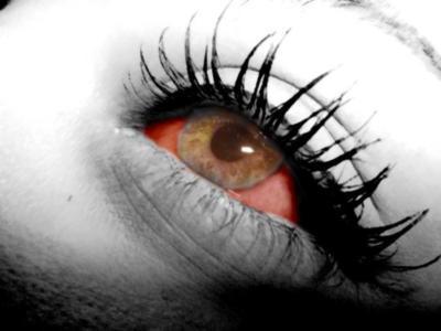 Eye of bloody